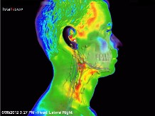lymphe thermal imaging