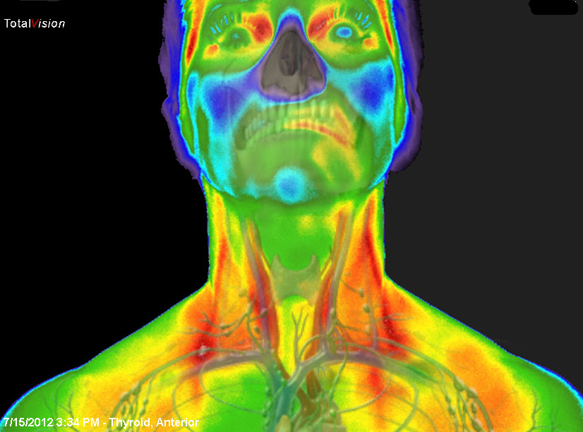 medical thermography Thyroid1