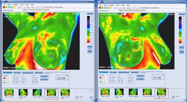 medical thermography breast screening